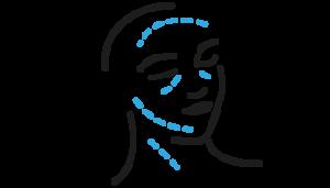 Zaawansowane procedury w estetyce twarzy- lipofilling i nici haczykowe 17